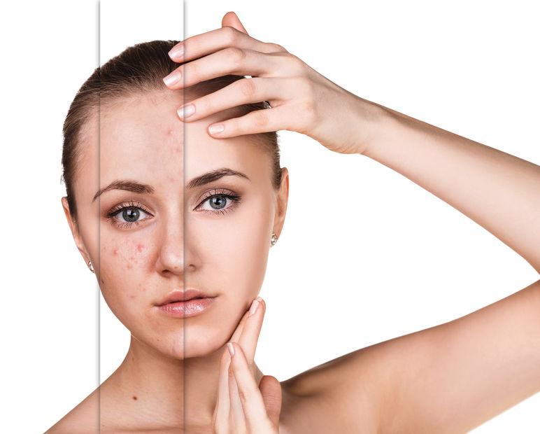 Mit IPL können auch Hautprobleme und Akne behoben werden.
