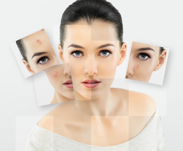 Frau mit Hautunreinheiten Gesicht. - Solche Hautunreinheiten können mit der Basic Gesichtsbehandlung behoben werden.